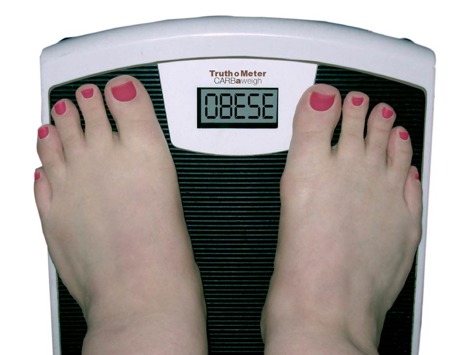 Patient Criteria Weight Loss Surgery